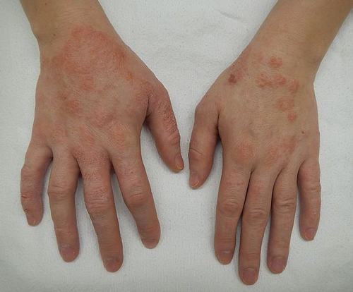 Immagine - dermatite alle mani - Credits: By James Heilman, MD - Own work, CC BY-SA 4.0, https://commons.wikimedia.org/w/index.php?curid=40647837
